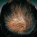 プロペシアの治療効果:男性型脱毛症に効果のある飲み薬 プロペシア~山本可菜子皮フ科クリニック~